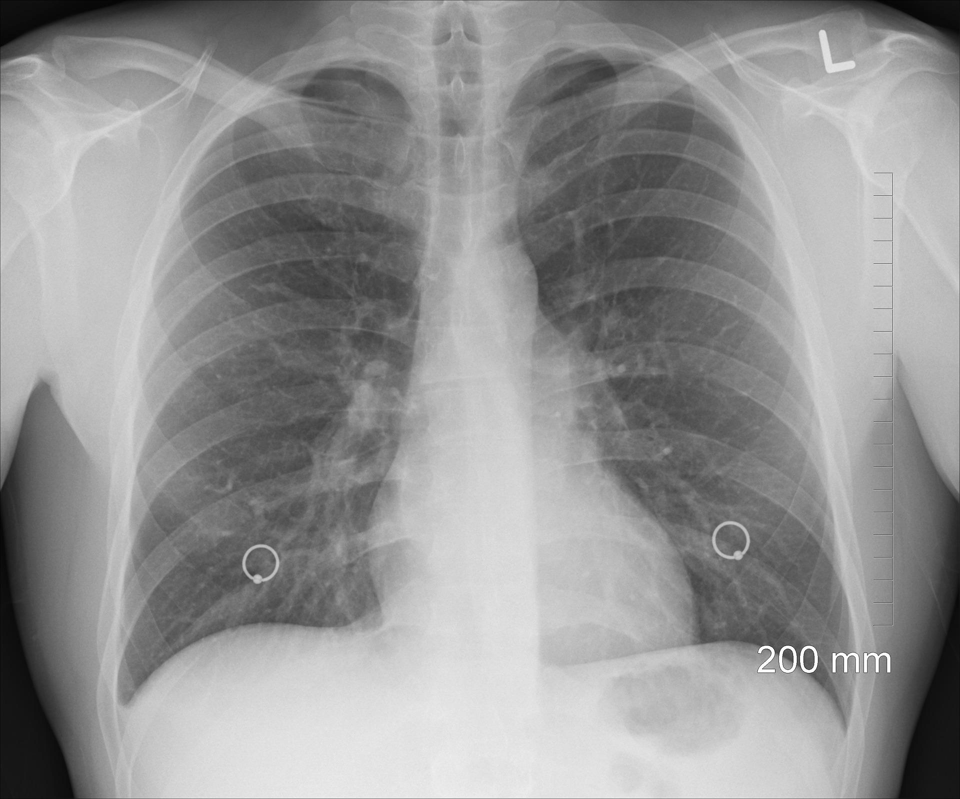 肺まで吸い込む